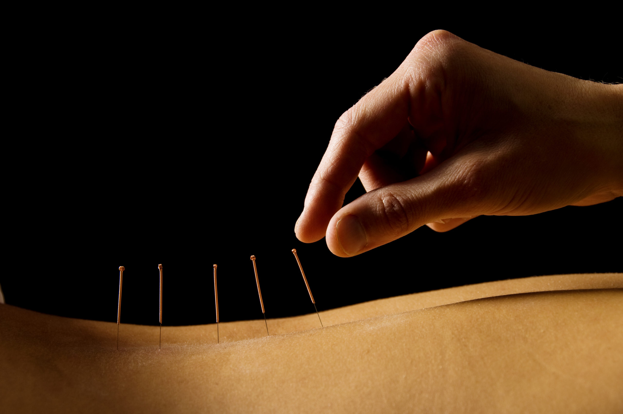 Acupuncture sensitive